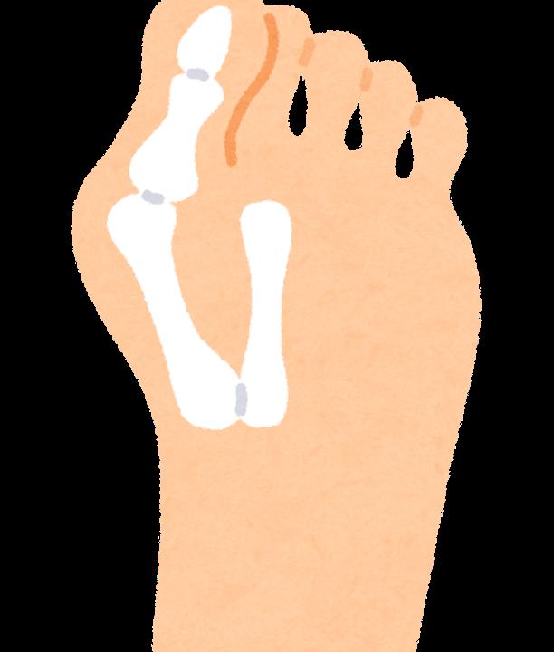 【巻き爪・外反母趾情報】仮骨性外反母趾